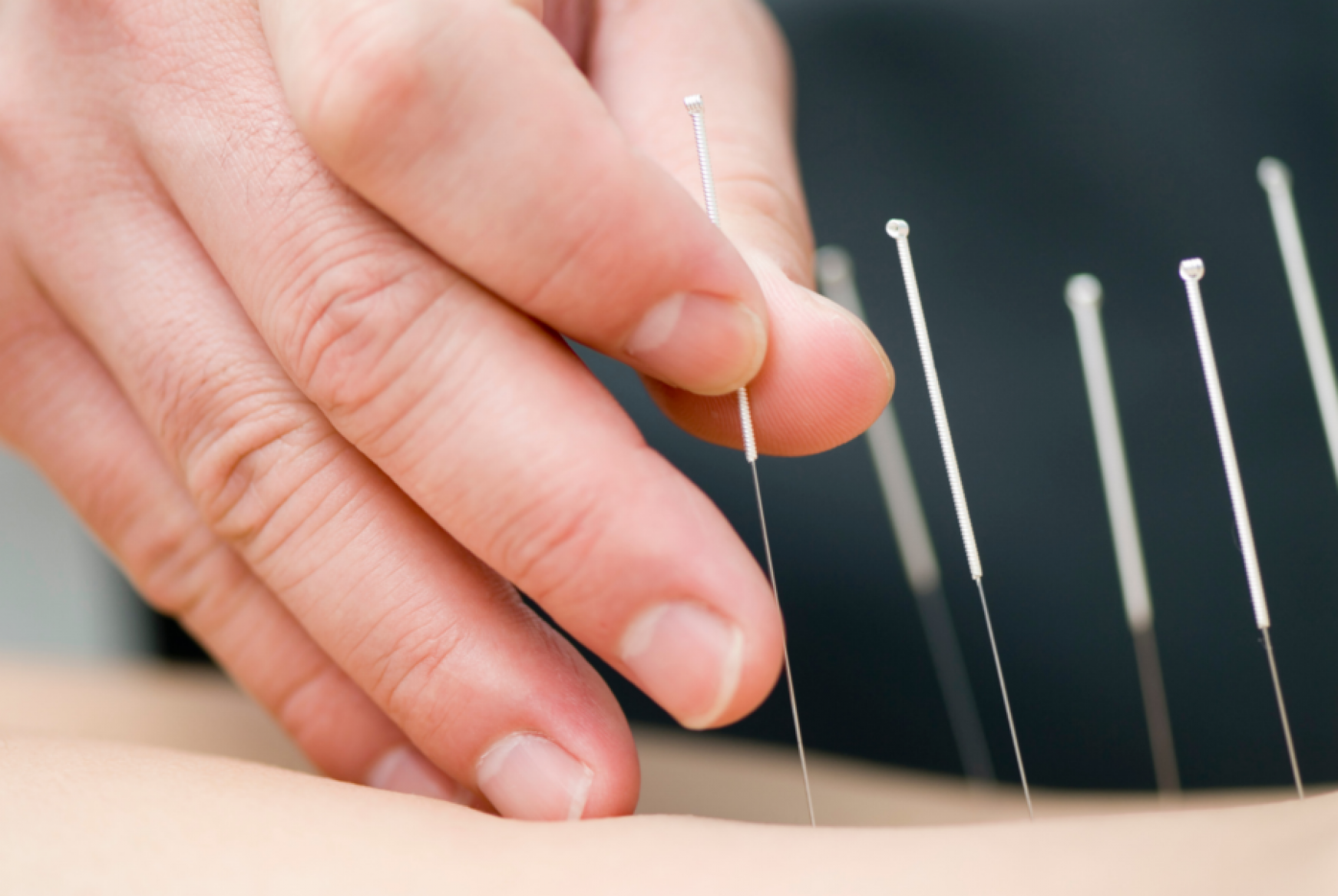 Acupuncture_Sub